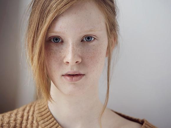 skóra naczyniowa – jak pielęgnować skórę naczyniową