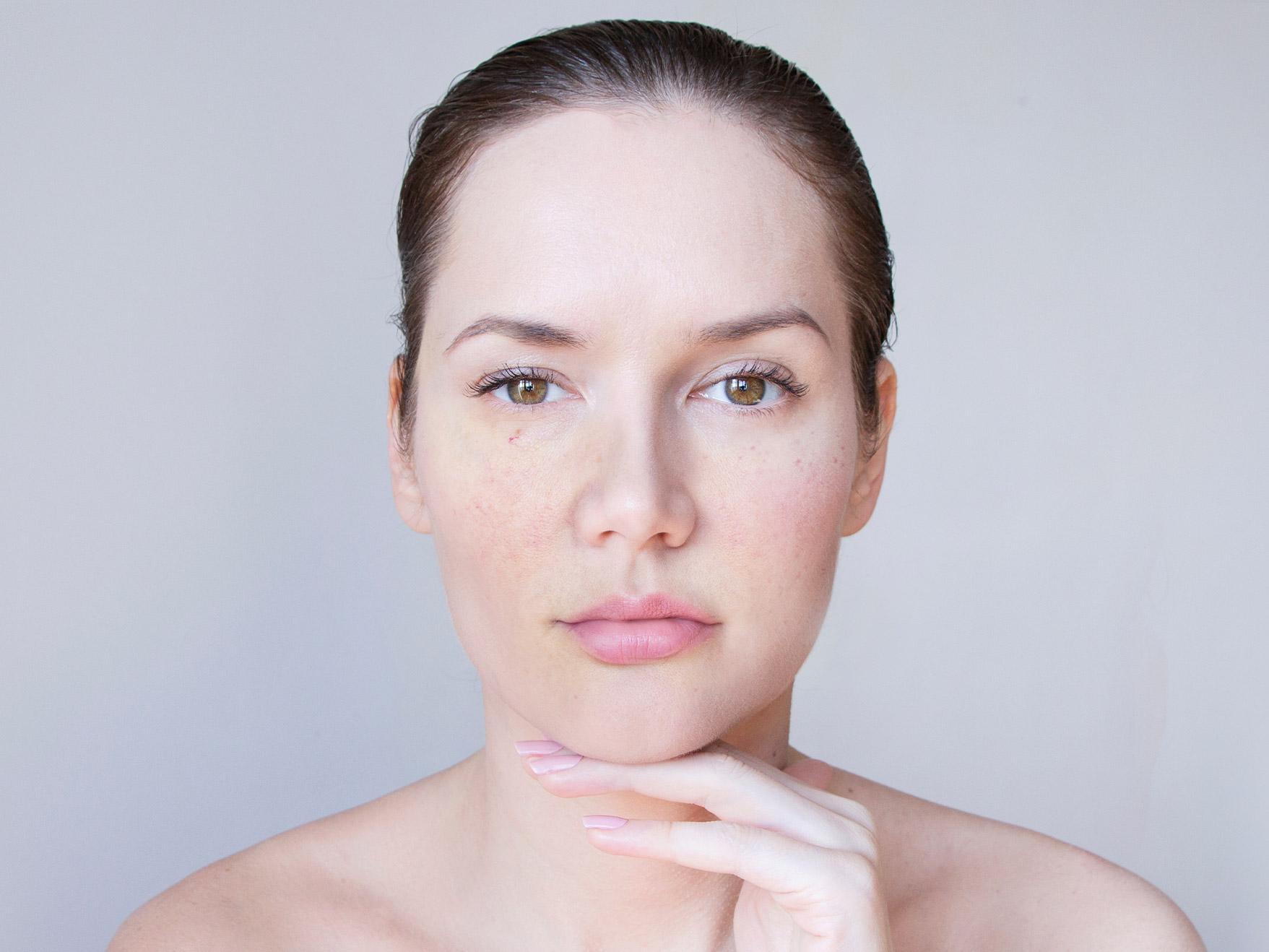co na rozszerzone naczynka na twarzy? Kosmetyki tołpa.® dermo face rosacal