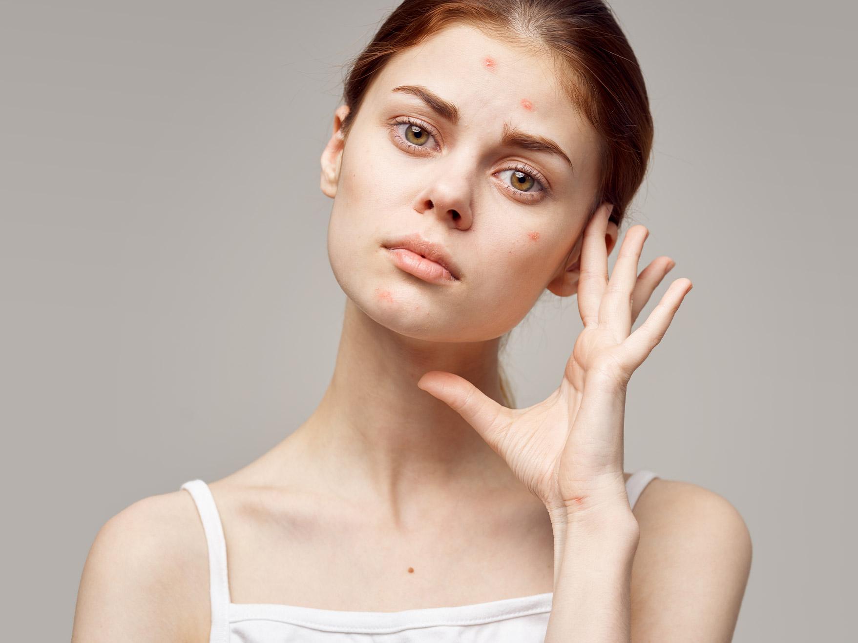 oczyszczanie skóry w zależności od rodzaju trądziku